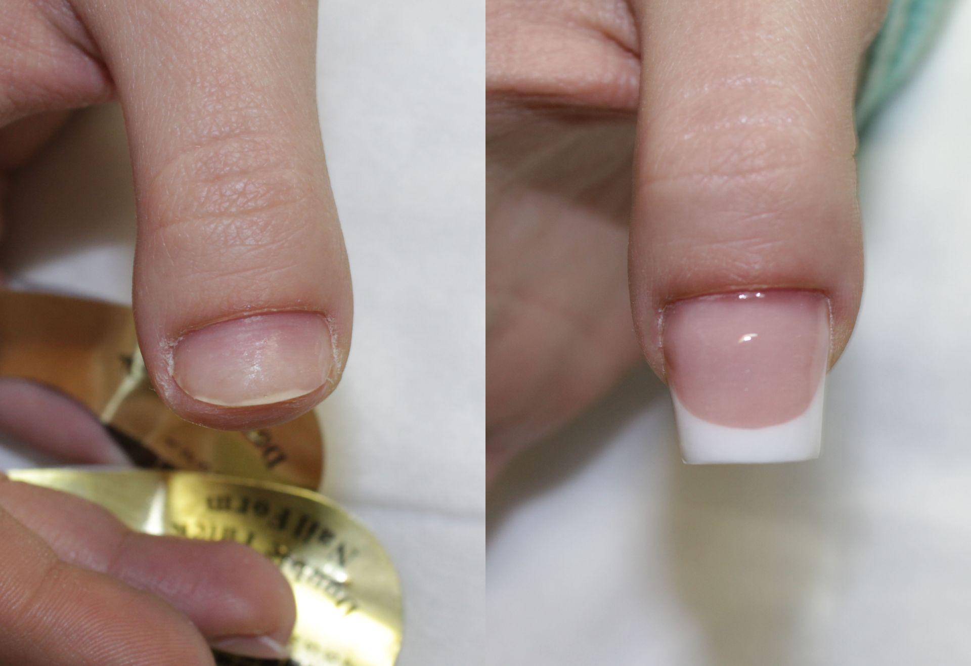 Укрепление своих ногтей акрилом фото